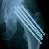 pinos-titanio-bacia-raiox-TB